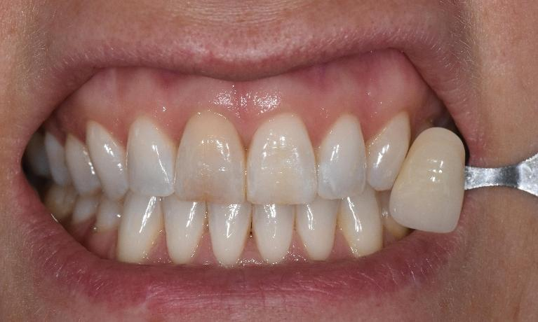 Teeth-Whitening-Before-Image